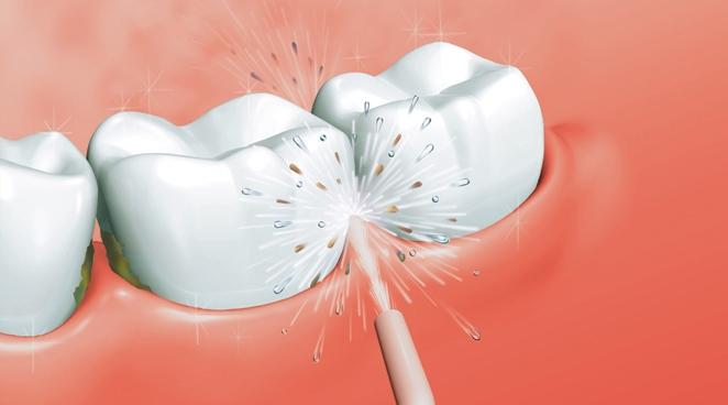 Ирригатор полости рта Power Floss оптом - 2